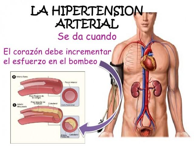 remedios caseros para la hipertension arterial