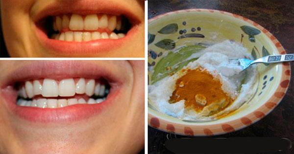 Esta pasta cura cualquier enfermedad en las encías, blanquea tus dientes y destruye las bacterias!