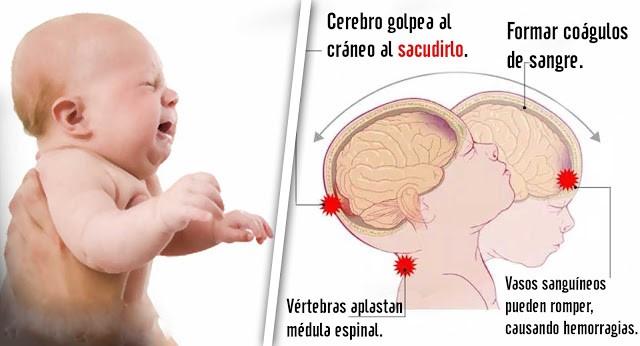 Nunca sacudas a tu bebé, puede ser mortal!