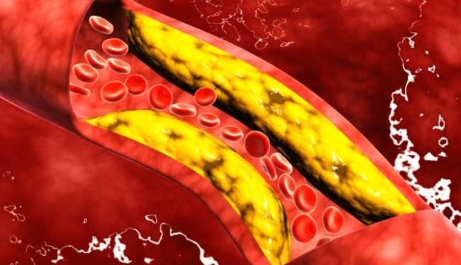 remedios-caseros-para-limpiar-las-arterias11-e1439698118587