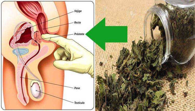previene-el-cancer-de-prostata
